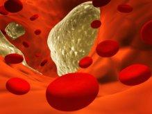 Вред от избытка холестерина